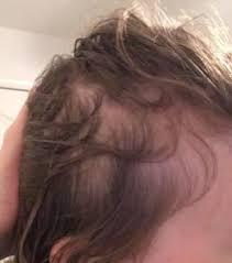 major hair loss curltalk