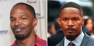 male celebrities who were losing hair