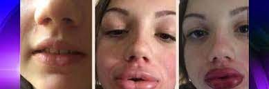 kylie jenner lip challenge could cause