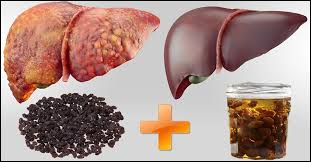 Fatty Liver Diet Chart In Telugu 20 Best Foods To Eat For A Healthy Liver