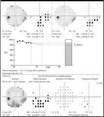 Sharpen Your Visual Field Interpretation Skills
