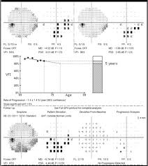 Visual Field Chart Interpretation Sharpen Your Visual Field Interpretation Skills