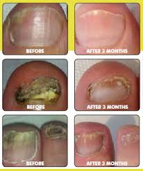 Accredited specialist laser treatment for fungal nail disease podiatrists