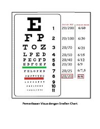 Snellen Chart 6 6 Pemeriksaan Visus Dengan Snellen Chart D4pq9g01k6np