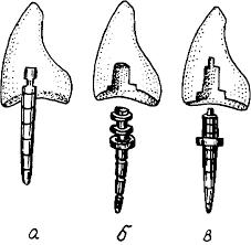 Протезирование комбинированной коронкой по штифтом по ахмедову Стандартные штифтовые зубы