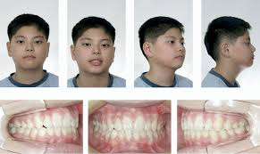 Figure 9 From Correction Of Deep Overbite And Gummy Smile By