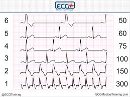 Ecg Chart Examples Large Block Method To Calculate Heart Rate Ecg Medical