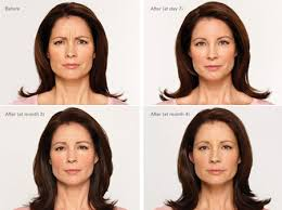 How Long Does Botox Last Botox Injections Brookings Health System