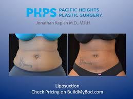 limitations on liposuction buildmybod