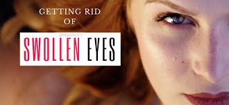 getting rid of swollen eyes from crying