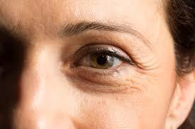 woman eye bag