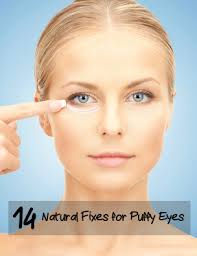 How to Fix Puffy Eyes, Causes, Best Solutions and Homemade Remedies ...