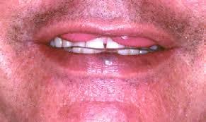 labio doble congénito asociado a