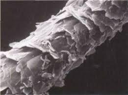 Výsledek obrázku pro kutikula kortex medula