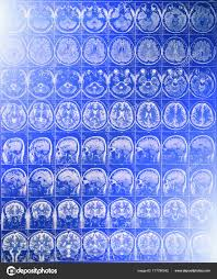 Blue Light Effect On Brain Mri Or Magnetic Resonance Image Of Head And Brain Scan With