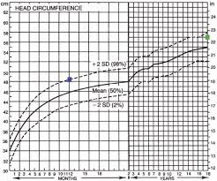 Head Circumference Chart Boys 2 18 The Value Of Head Circumference Measurements After 36 Months