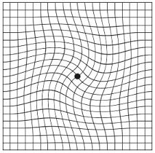 Amsler Chart Amsler Grid Test Retina Ophthalmology Gettysburg Pa