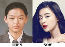 por korean celebrity jun ji hyun did she have cosmetic surgery