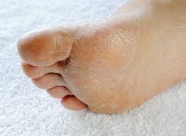 Black fungus on bottom of feet
