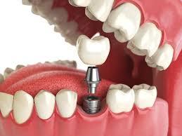 Oral and Maxillofacial Surgery - Southern Indiana Surgery Center Bloomington
