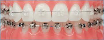 Orthodontics Treatment Braces Brackets Dental Tooth Movement Dr