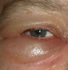 periorbital edema pictures causes