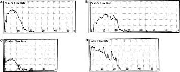 Interpretation Of Uroflowmetry Curves By Urologists Sciencedirect