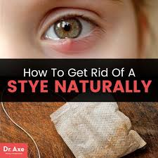 how to get rid of a stye naturally dr axe