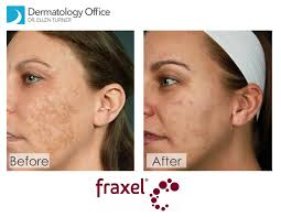 Dermatologist laser skin resurfacing cost