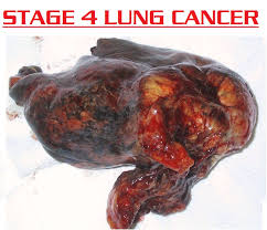 Stage 4 Lung Cancer Survival Rate About Lung Cancer 3000 December 2012