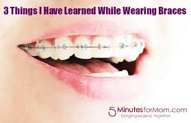 Quotes About Braces 40 Quotes Impressive Braces Quotes