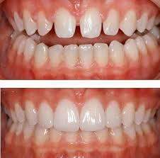 carillas dentales carillas dentales composite porcelana belgrano 1 500 en mercado