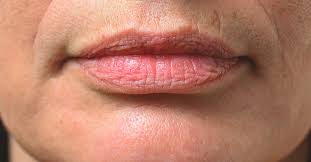 smoker s lips why you get them how