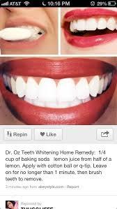 best teeth whitening procedure dental whitening gel diy teeth whitening home teeth whitening kit laser whitening teeth whitening for yellow teeth