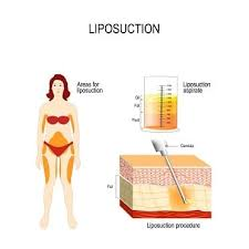 best cost of liposuction in delhi with