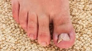man with an ingrown toenail