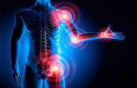 Resultado de imagem para artrose