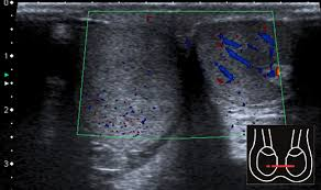 testicular torsion ultrasound. testicles in transversal plane with color doppler. swollen right testicle virtually absent doppler signal; testicular torsion. torsion ultrasound