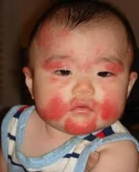 Baby Rashes from A to Z (Acne to Eczema!) and When Is It a Milk ...