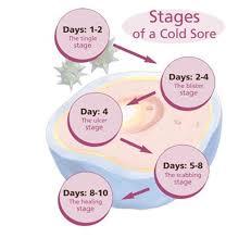 cold sores fever blisters arlington