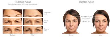 We use botox® in our vancouver practice for chronic migraine therapy. Botox Cosmetic Edmonton Ab