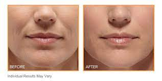 botox for mouth lines wrinkles nyc