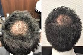 頭頂部の薄毛に悩まれている30代の男性の髪形をカットで改善