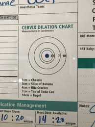 Anesthesia Team H B 70138 Cervix Dilation Chart