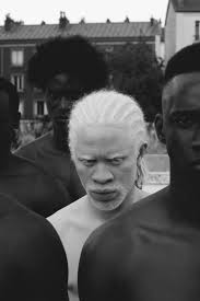 melanistic vs albino humans. Modren Humans Melanistic Vs Albino Humans  Photo4 Throughout Vs Albino Humans E