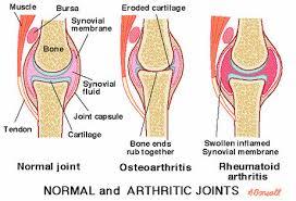 Image result for rheumatoid arthritis pictures