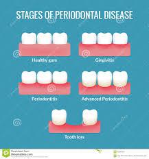 Periodontal Disease Chart Stock Vector Illustration Of