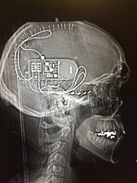 Neuropace Implanted To Shock My Epilepsy Seizures Pics