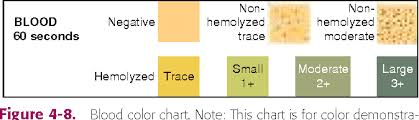 Multistix Color Chart Figure 4 8 From Chemical Analysis Of Urine Key Terms
