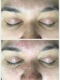 freckles are the hottest new trend in permanent makeup this technique results in soft natural looking freckles that last 6 24 months
